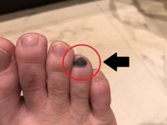 足の爪の内出血