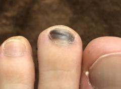 足の爪が内出血
